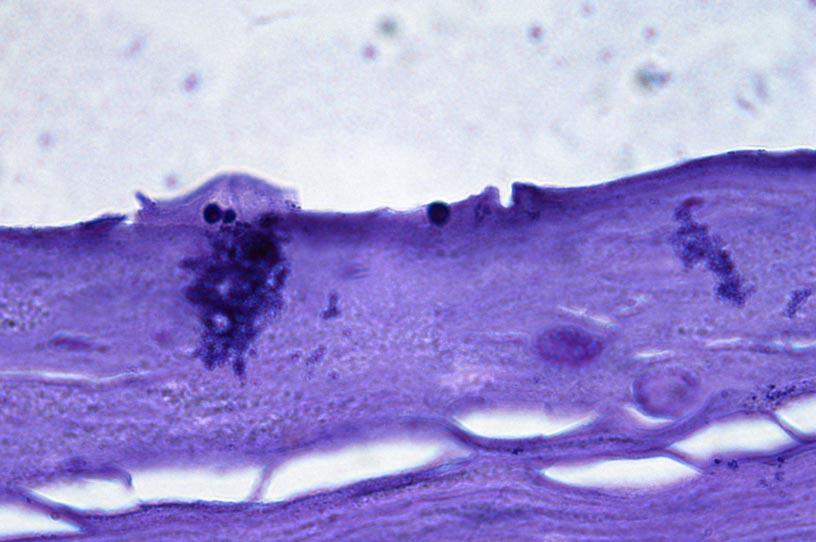 Malassezia Globosa Comensal Microflora Mix